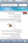 רופא עיניים